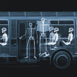 Too weird - x-ray photographer Nick Veasey uses either skeletons in rubber suits, or cadavers to capture the human form in his photographs. When working with cadavers, he has around eight hours to pose and shoot before rigor mortis sets in.