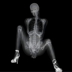 Japanese computer display company EIZO wanted to promote its high-end monitors to doctors with this x-ray pinup calendar.