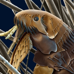 Amazing Scanning Electron Microscope pictures of insects and spiders.