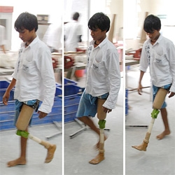JaipurKnee Project - $20 artificial knee for patients in the developing world out of stanford
