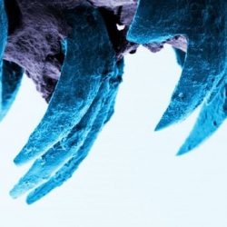 Researchers believe teeth of the limpet may be the strongest natural material (even stronger than spider silk).