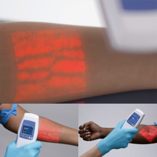 AccuVein - uses IR to scan and find your veins, then projects it with Augmented Reality! (Wish my doctor's office had this the other day after hunting for veins...)