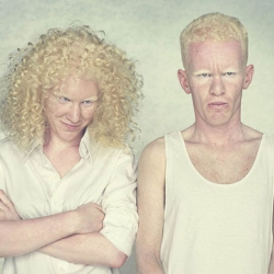 This series of photographs entitled Albinos by Gustavo Lacerda, photographer based in São Paulo. This series has received several awards and was published in the collection Pirelli/MASP and Porto Seguro Photography.