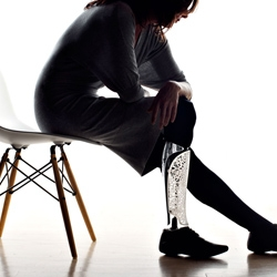 Bespoke Innovations, Inc. was founded in 2009 by an Industrial Designer and an Orthopedic Surgeon whose mission was to bring more humanity to people who have congenital or traumatic limb loss.