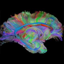 The Brain Unmasked ~ incredible visualizations in the slideshow at Technology Review showing new imaging technologies