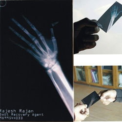 "Collection of well designed, and inventive business cards. ""Clear message from a debt recovery agent. If you don't pay I'll break your bones. Here's the x-ray of my last client broken finger as proof."""