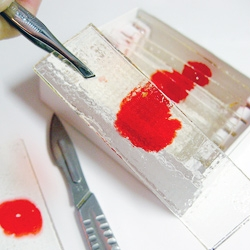Candy Blood Slides ~  A great Dexter themed Halloween treat from Forkable.