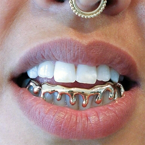 Toronto Grillz / Maison Raksha - the go to jeweler to gild your teeth in dripping yellow, white, rose, and black gold.