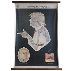 """Trumpus Infantilius"" Print by Sideshow Sign Co. Nashville - The Anatomy of Trump."