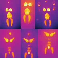 Xavier Segers made a tribute to Yves Klein his Antropometrie. Instead of painting naked women blue and using them as stamps against a wall, he pressed naked people against a wall and used a themal camera to capture the transferred bodytemperature.
